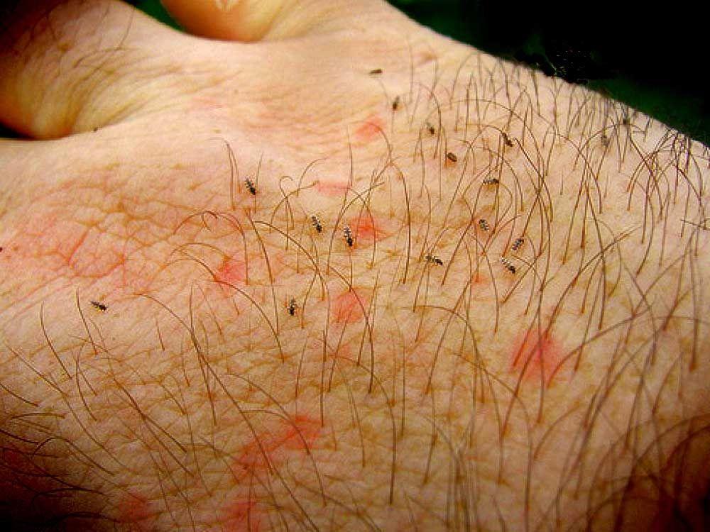 Απομάκρυνση και εξολόθρευση σε ψύλλους από άνθρωπο